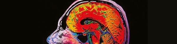 Neurology Action Plan