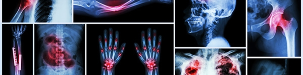 Orthopaedic and trauma 2019