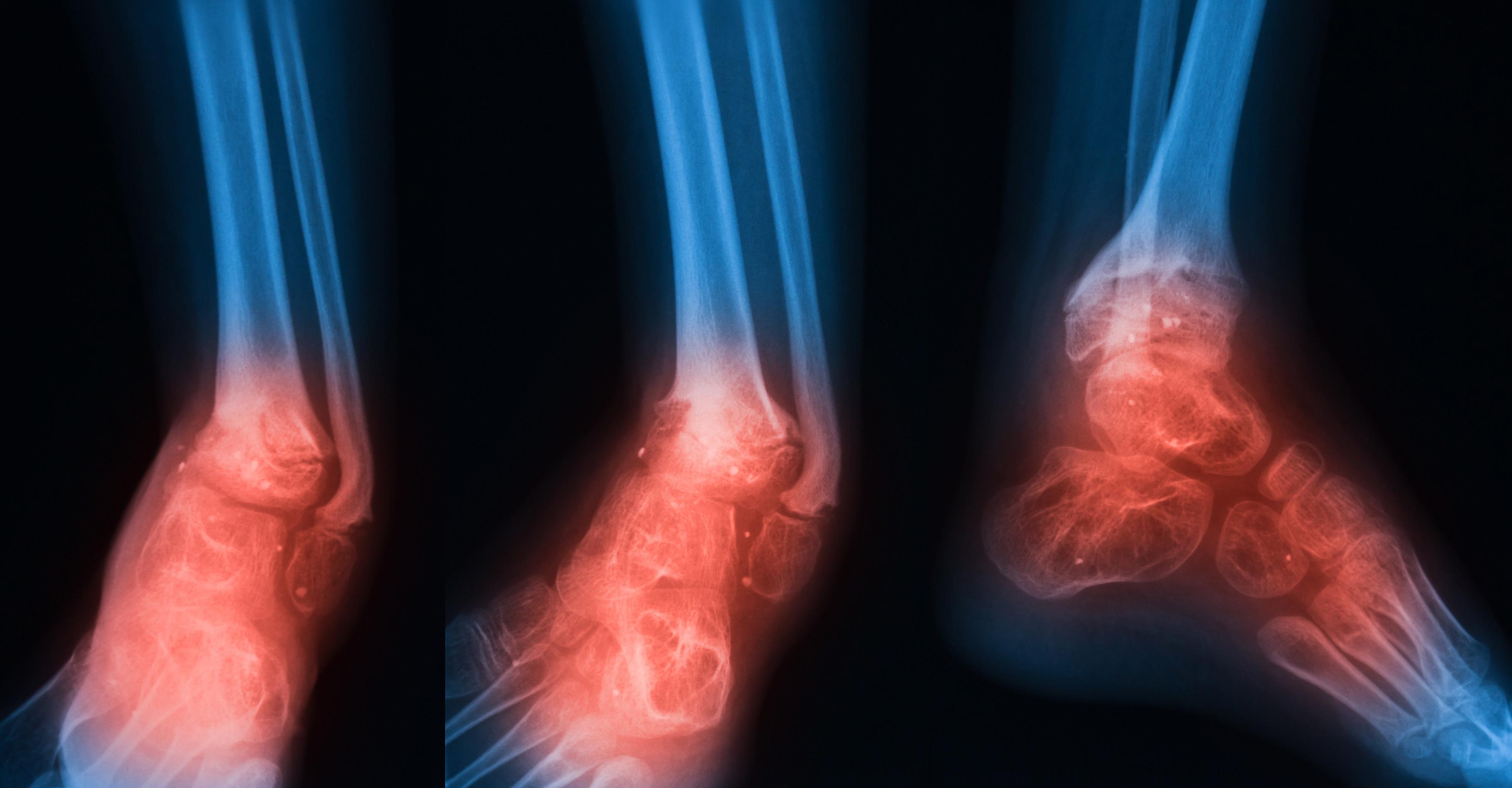 Diabetes Foot disease: An MDT approach to chronic diabetes foot disease management